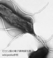 ピロリ菌外来
