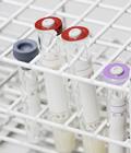 ピロリ菌感染検査(血液・尿)